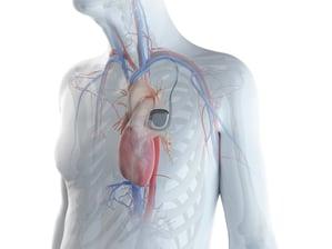 EMI Filter Assemblies for Implantable Defibrillators